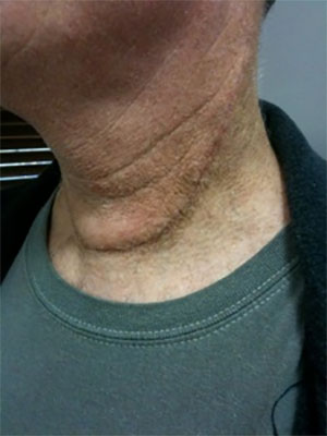 recurrent-thyroid-cancer